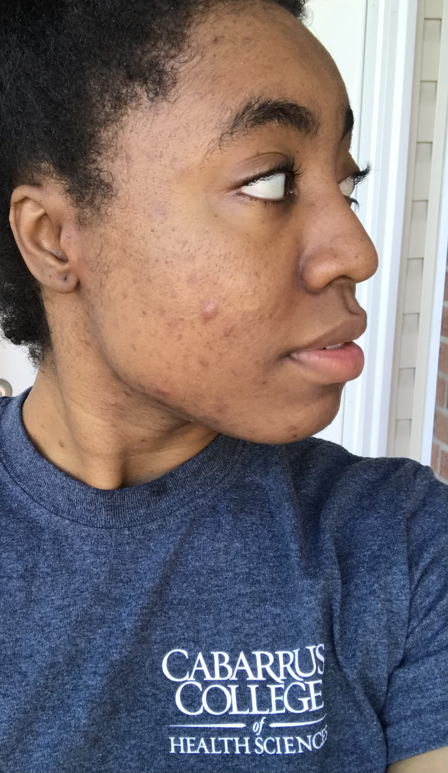 How I Cleared My Acne and Hyperpigmentation with TULA